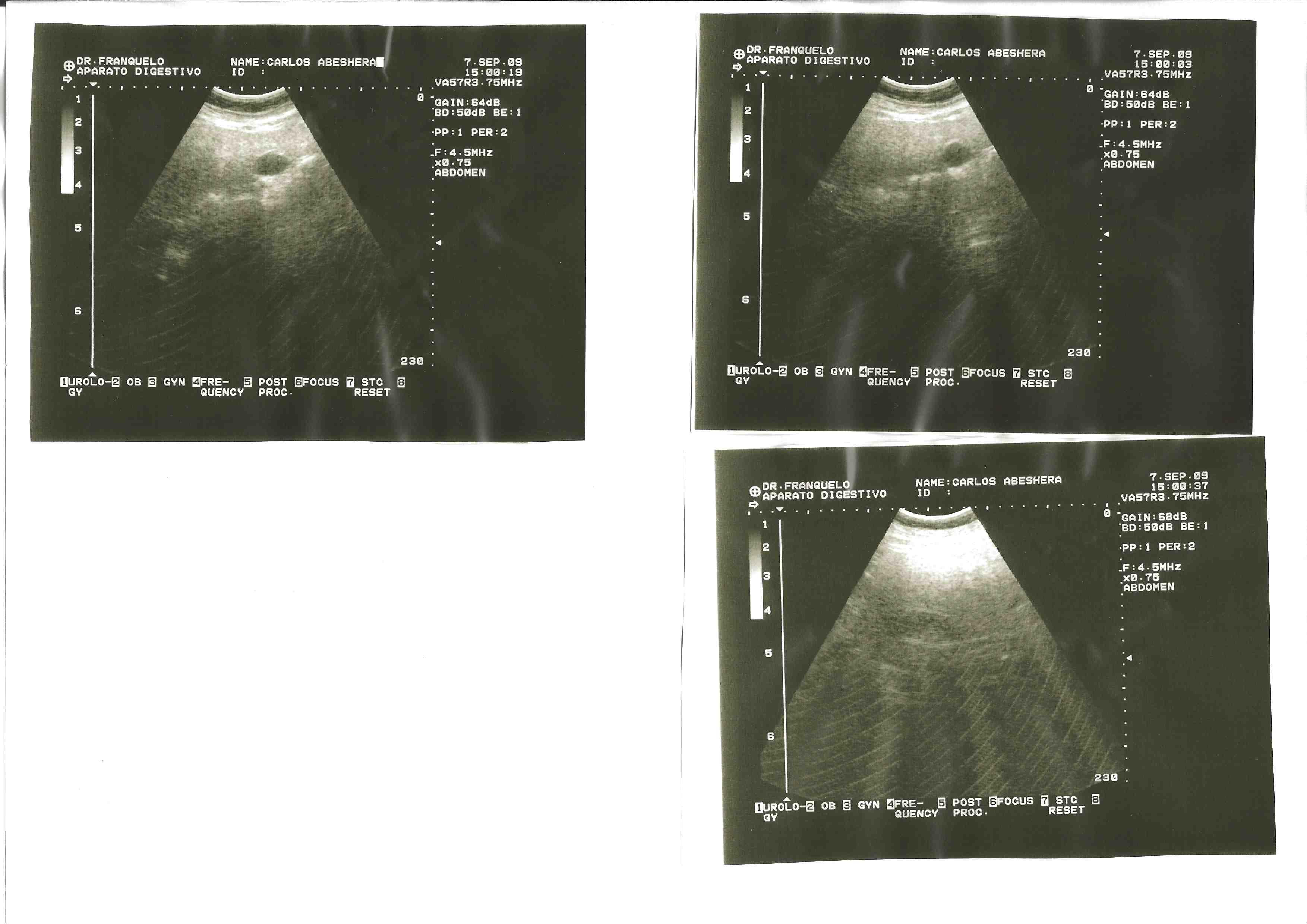 4 - 7 Septiembre 2009 - Digestivo