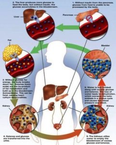 Esquema de Cetoacidosis Diabética